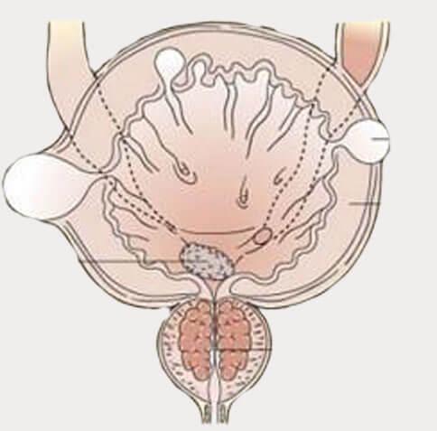 Что хорошо помогает от хронического простатита