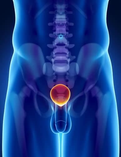 Хронический простатиты мкб 10