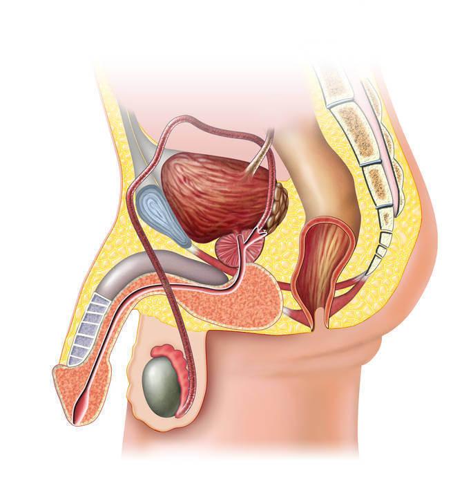Взаимосвязь простатита и аденомы простаты